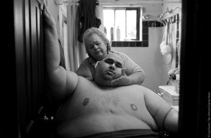 A Life Apart: The Toll of Obesity 1